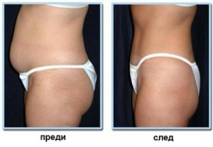 женско тяло отслабване
