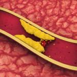 Диета антихолестерол