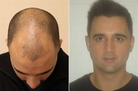 Как Ефект- 2 върна към живот присадената ми коса!
